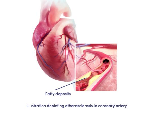 Coronary Heart Disease- Medical Animation